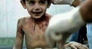 Сиријски дечак тренутак пре смрти: Све ћу вас рећи Богу… 7