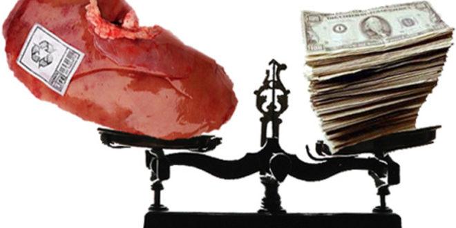 Закон о трансплатацији: Вадиће нам органе и на силу 1