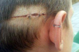 УЖАС У У СУБОТИЦИ: Мигрант исекао из чиста мира дечака скалпелом по глави