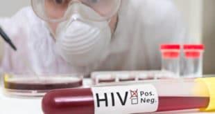 Србија: Раст оболелих од СИДЕ, углавном хомосексуалаца