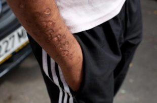 И ТО ЈЕ ЕВРОПСКА УНИЈА: Брисел уништава новом дрогом Румунске Роме