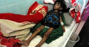 Милиони деце гладују у Јемену