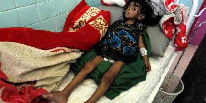 Милиони деце гладују у Јемену 1
