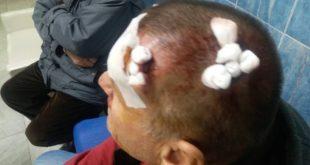 АРАНЂЕЛОВАЦ: Мигранти обили кафану и нанели тешке телесне повреде власнику