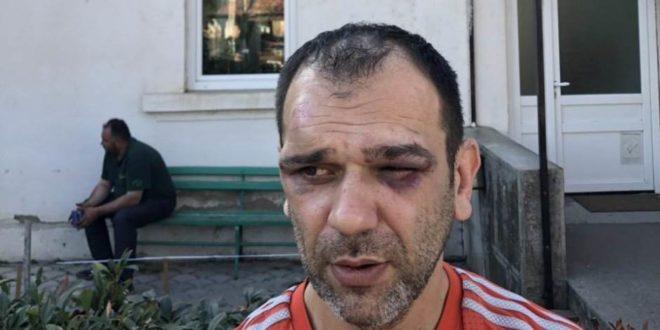 Напредни фашисти пребили организатора протеста опозиције у Житорађи! 1