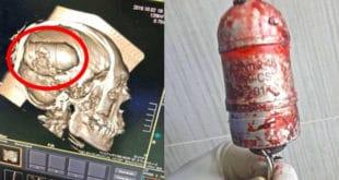Српска граната М99 извађена из главе ирачког демонстранта [ФОТО]