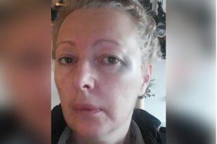 Београд: Северноафрички мигрант напао новинарку ударивши је два пута песницом у главу