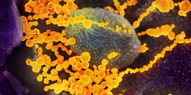 """Кембриџ: У новом корона вирусу нађено осам уметнутих """"људских аминокиселина"""""""