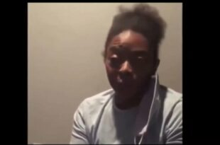 Медицинска сестра добила парализу лица од Фајзерове вакцине (видео)