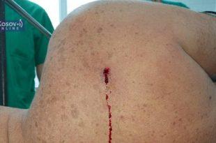 Звечан: Шиптарска терористичка банда пуцала у леђа Срећку Софронијевићу
